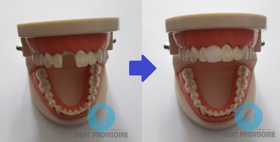 exemple dent provisoire