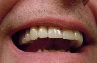 Peut-on débuter un traitement avec une dent temporaire ?