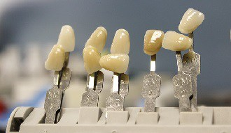 acheter dents provisoires