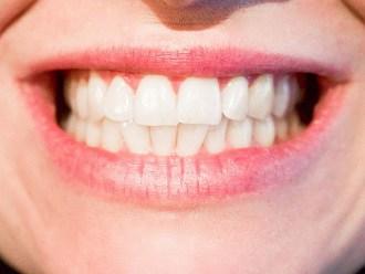Solutions de remplacement pour camoufler une dent manquante