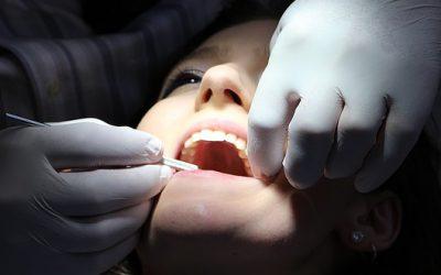 Quelle solution pour remplacer une dent cassée ?
