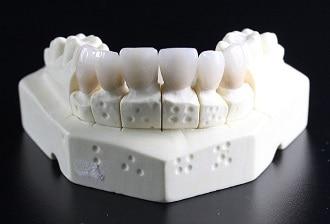 Remplacer une dent manquante, quelles alternatives s'offrent à vous ?