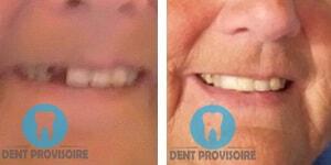 avant apres provisoire dent