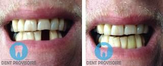 dent provisoire photo